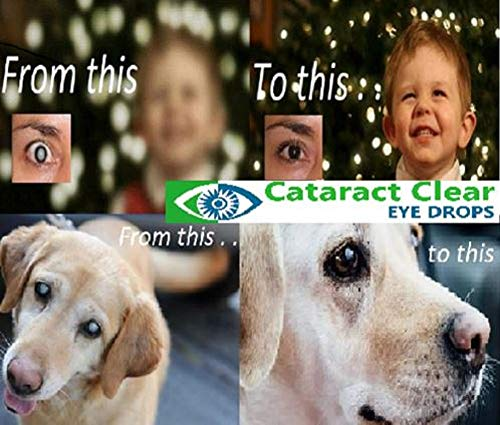 2 X 15ml (0.5 Fl Oz) Bottles Of The Best Cataract Treating Eye Drops Anywhere, 2% N Acetyl Carnosine. Twice As Strong As Most Similar Products. Holistic & Proven Gently Effective On People & Pets!